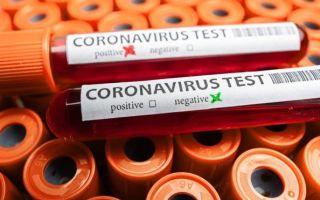 Что такое SARS-CoV-2: уникальные свойства коронавируса