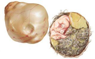 Узи тератомы яичника — причины возникновения патологии