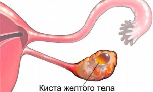 17 OH прогестерон — когда и как сдавать анализ на гормон