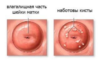 Мелкие ретенционные кисты шейки матки