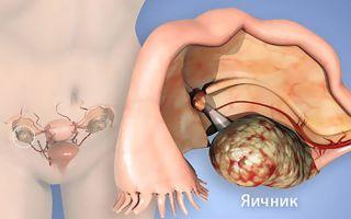 Опухолевидные образования яичников — классификация, эффективная терапия и прогноз