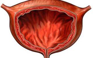 Эндометриоз в мочевом пузыре — какие симптомы и причины патологии