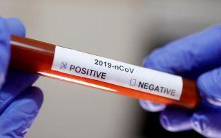 Где сдать тест на коронавирус: цена
