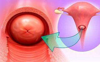 Хронический и острый цервицит — воспалительный процесс слизистой оболочки шейки матки