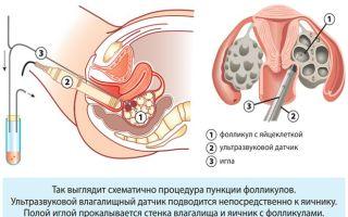 Где находится поджелудочная железа у человека