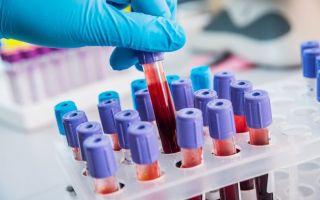Анализ на антитела к коронавирусу Covid-19: цена