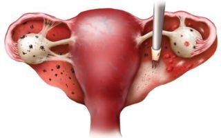 Лечение диффузного эндометриоза матки