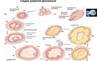 Персистенция фолликула правого и левого яичника — методы лечения