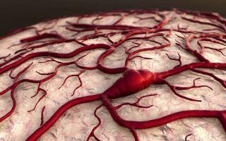 Лечение ангиопатии сосудов и нижних конечностей