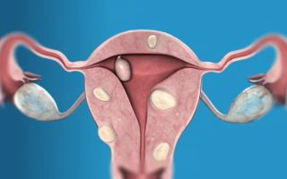 Интрамуральная лейомиома матки — что это такое