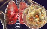 Поражение лёгких при короновирусе