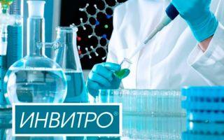 Сдать тест на коронавирус Covid-19 в «Инвитро»