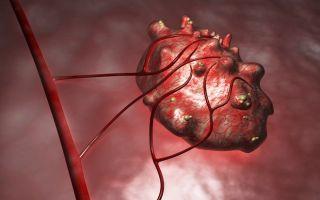 Эндометриоидная киста на яичнике — симптомы и последствия