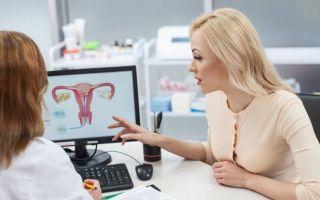 Симптомы и эффективные методы терапии эндометриоза шейки матки