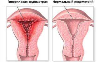 Может ли переходить в рак атипическая гиперплазия эндометрия