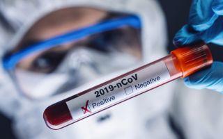 Проходит ли коронавирус Covid-19 без лечения
