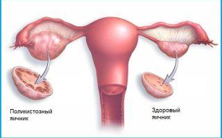 Причины, симптомы и лечение кистозного изменения яичников