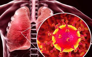 Лечение пневмонии при коронавирусе: медикаменты, интенсивная терапия