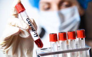 Заразны ли люди после прививки от коронавируса Covid-19