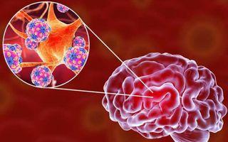 Коронавирус — нейротропная инфекция: период появления неврологических нарушений