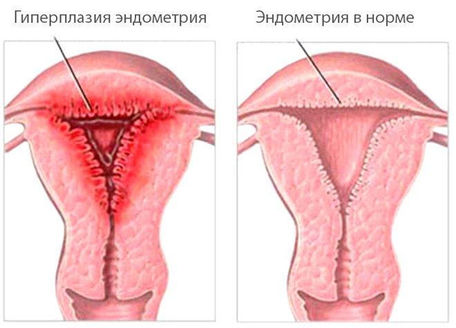 Фиброзно кистозная гиперплазия эндометрия