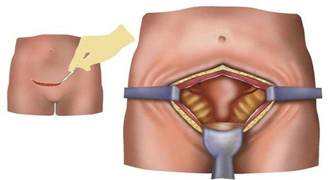 Дермоидная киста яичника: симптомы, лечение и профилактика. Операция при дермоидной кисте