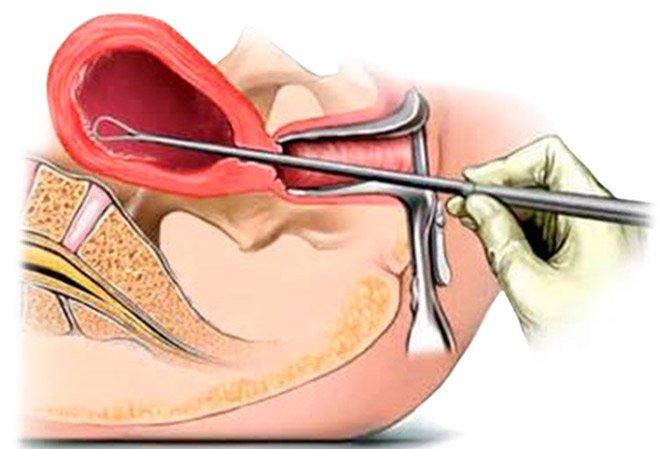 Чем опасна гиперплазия эндометрия