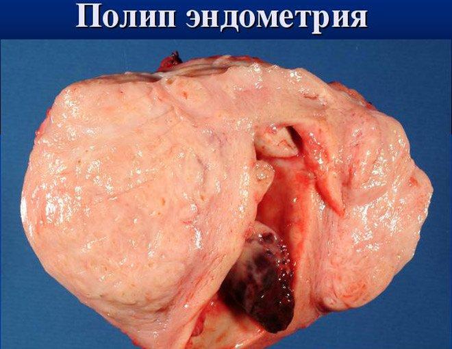 Гинекология гиперпластические процессы эндометрия