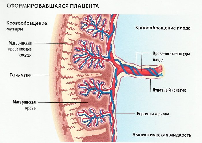 Кольцевидная плацента при беременности