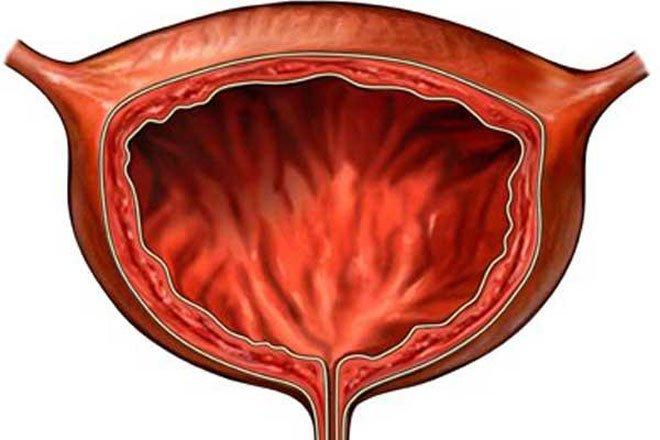 Аденомиоз давит на мочевой пузырь